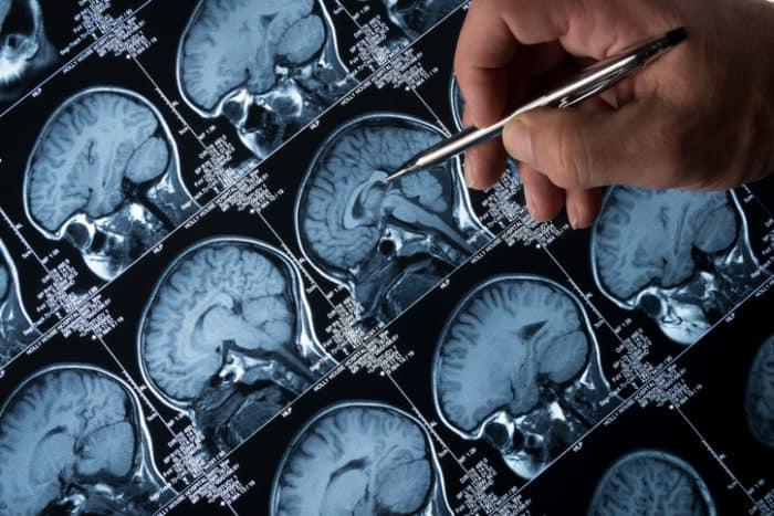 Pubertät: Cannabis verändert Reifung des Gehirns