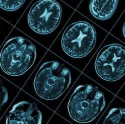 Wirkung von THC im Gehirn. Neue Studie aus Kanada