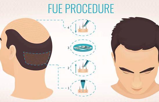Трансплантация на коса по метода FUE в Турция