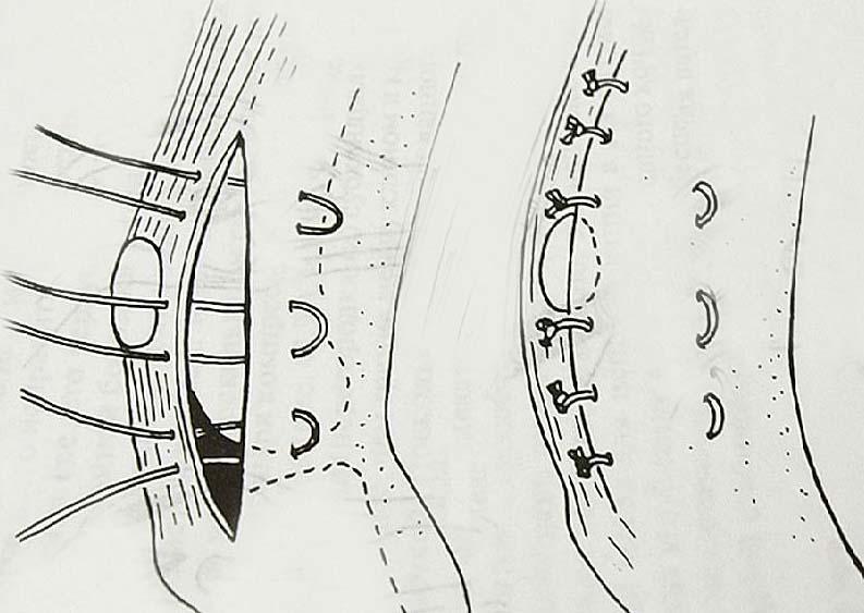 Дупликатура капсулы коленного сустава
