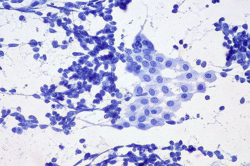 Niedrobnokomórkowy rak płuca – leczenie