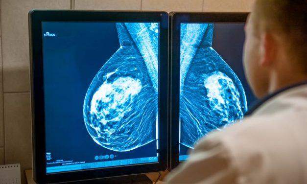 Nowoczesne leczenie raka piersi – poradnik