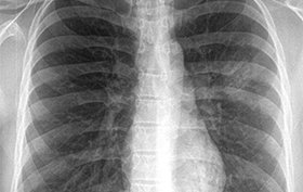 27-year-old man with a cough and fever