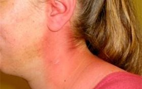 Patient experiencing intense pain and redness of skin