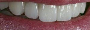 Change the shape of teeth