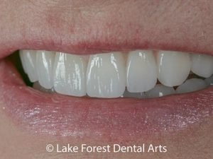 Porcelain smile improvements