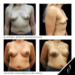 Breast Implants #5009 · Rancho Cucamonga, Upland, Inland Empire