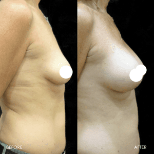 Breast Lift Procedure Before & After #5019