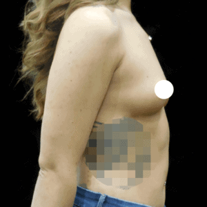 Before & After Breast Implants Case Study 5021