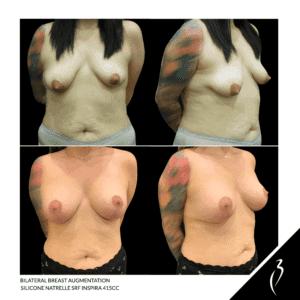 Breast Augmentation Rancho Cucamonga Case Study 5055