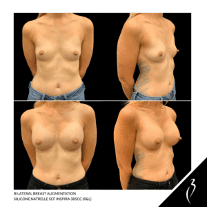 Breast Augmentation Before After #5054 · Rancho Cucamonga, Ca