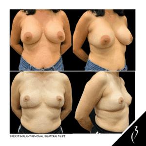 Remove Breast Implants, Breast T-Lift #5053 · Rancho Cucamonga