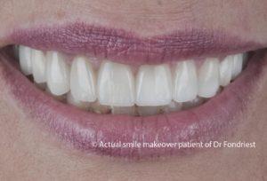 Smile makeover - after image