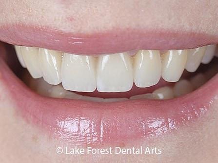 veneers can make teeth strong