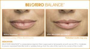 Belotero Before & After Photos: Set 5