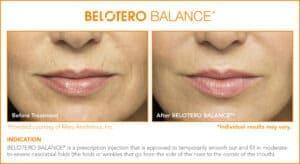 Belotero Before & After Photos: Set 3