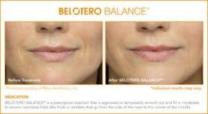 Belotero Before & After Photos: Set 2