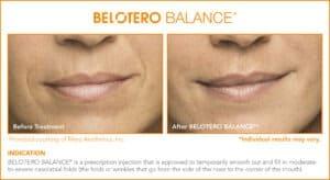 Belotero Before & After Photos: Set 1