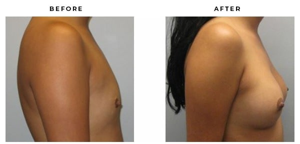 Before & After Pics. Breast Augmentation by Dr. Della Bennett, MD. of Gemini Plastic Surgery in the Inland Empire