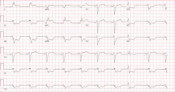 Figure 1 of ECG Image