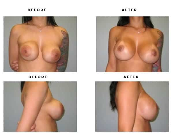Before & After Photos- Remove and Replace Implants - Chief of Plastic Surgery- Dr. Della Bennett, MD. of Gemini Plastic Surgery - Top Board Certified Plastic Surgeon in Los Angeles, Orange County, Inland Empire & San Bernadino. Study #2256