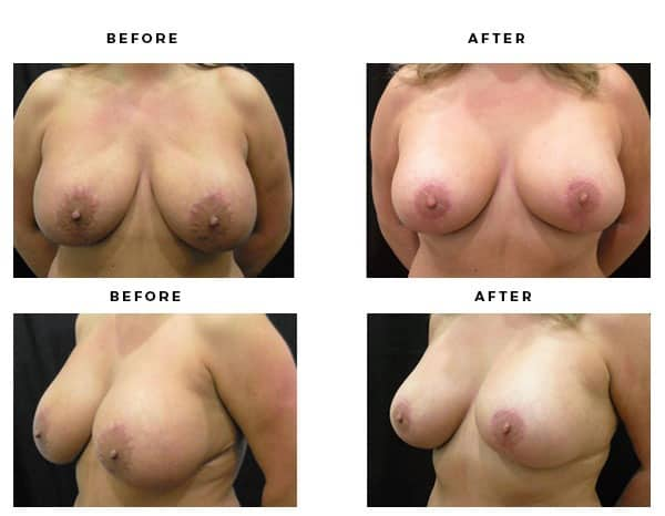Before & After Images- Remove and Replace Implants - Dr. Della Bennett, MD. of Gemini Plastic Surgery - Top Board Certified Plastic Surgeon in Orange County, Los Angeles & Inland Empire Case Study #4809