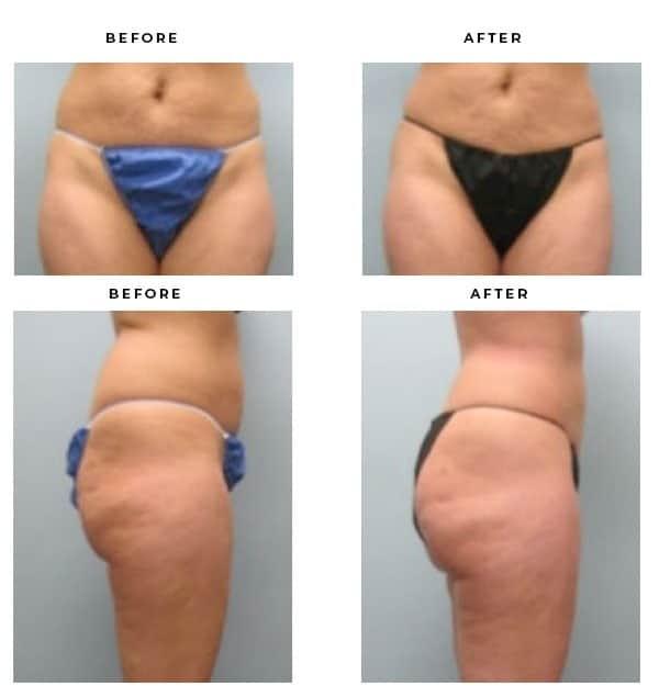 Before & After Galleries- Brazilian Buttock Lift - Dr. Della Bennett, MD. of Gemini Plastic Surgery in Los Angeles, Orange County, Inland Empire & San Bernadino. Case Study #2395