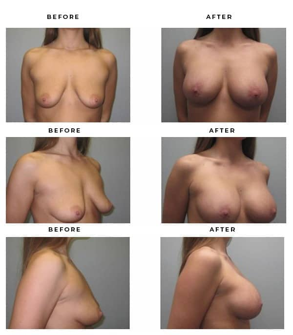 Before & After Images- Boob Job- Dr. Della Bennett, MD. of Gemini Plastic Surgery in Rancho Cucamonga. Case Study #3128