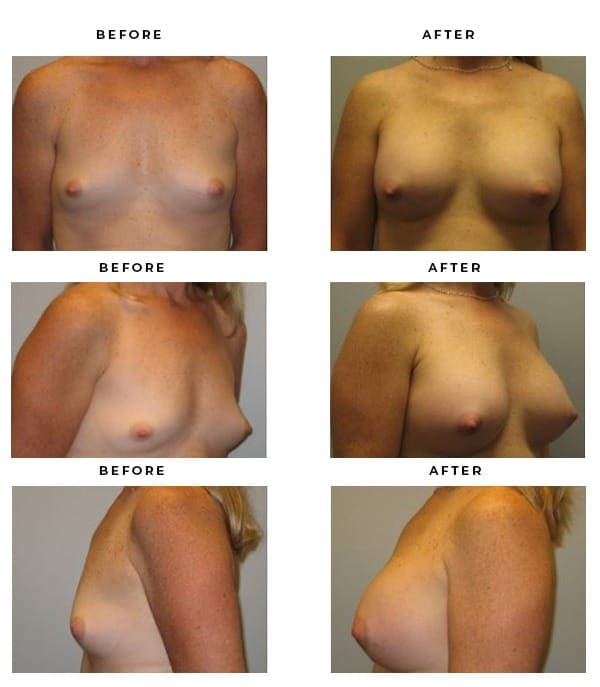 Before & After Pics- Breast Reconstruction - Dr. Della Bennett, MD. of Gemini Plastic Surgery in Rancho Cucamonga. Top Board Vertified Plastic Surgeon. Case Study #3144