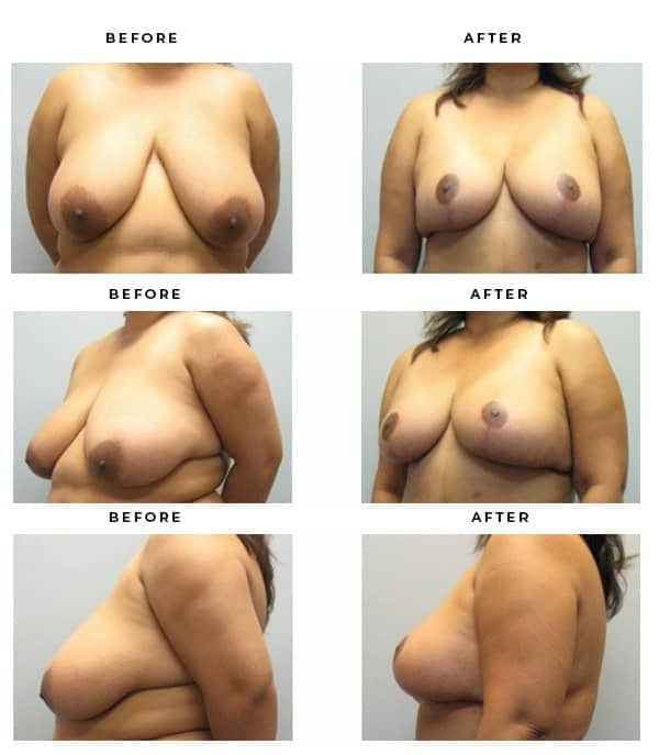 Before & After Photos- Breast Reduction - Chief of Plastic Surgery- Dr. Della Bennett, MD. of Gemini Plastic Surgery - Top Board Certified Plastic Surgeon in Los Angeles, Orange County, Inland Empire & San Bernadino. Study #3393