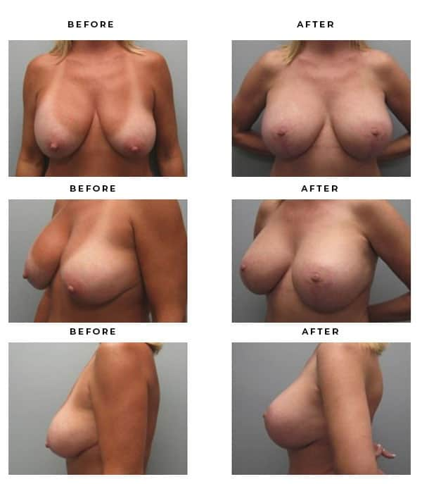 Before & After Photos- Remove Implants, Replace and Lift Scars and Results - Chief of Plastic Surgery- Dr. Della Bennett, MD. of Gemini Plastic Surgery - Affordable Breast Lift Surgery- Best Board Certified Plastic Surgeon in Rancho Cucamonga. Study #2180