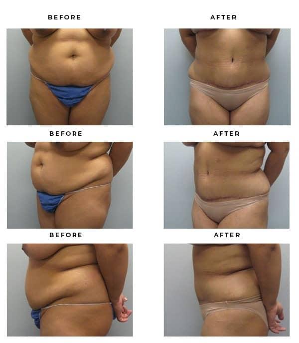 Before & After Images- Lipo, Mini Tummy Tuck - Dr. Della Bennett, MD. of Gemini Plastic Surgery in Rancho Cucamonga. Top Board Certified Plastic Surgeon in OC, LA, Inland Empire. Case Study #2795