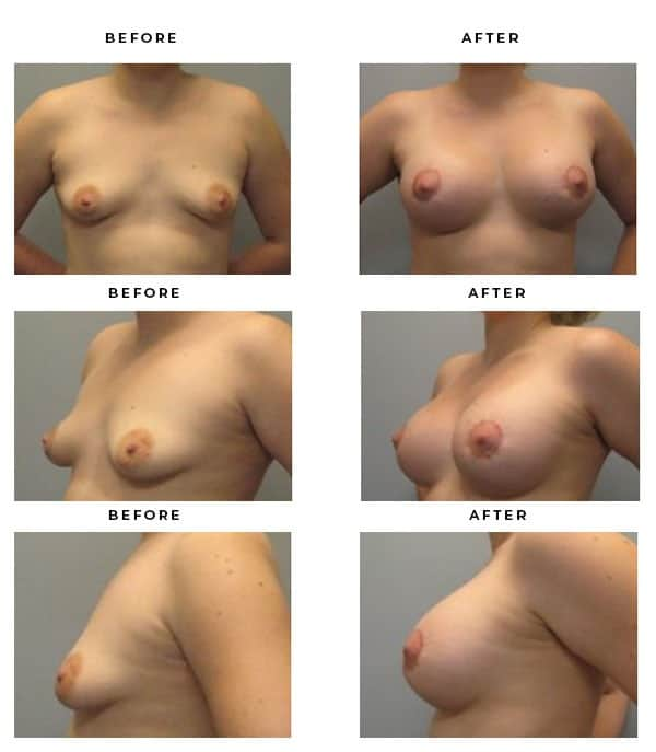 Before & After Photos- Breast Augmentation & Lift Surgery. Scars and End Results - Chief of Plastic Surgery- Dr. Della Bennett, MD. of Gemini Plastic Surgery - Top Breast Lift Surgery- Top Ranked Board Certified Plastic Surgeon in Southern California. Case Study #2174.