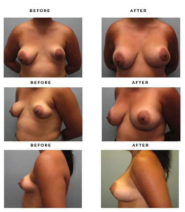 Before & After Pictures - Breast Implant and Lift Surgery Galleries. Scars, End Results, Recovery Gallery - Chief of Plastic Surgery- Dr. Della Bennett, MD. of Gemini Plastic Surgery - Best Results for Breast Lift Surgeon- Best Board Certified Plastic Surgeon in Los Angeles, Orange County, Inland Empire & Rancho Cucamonga, Ca. Case Study #4199