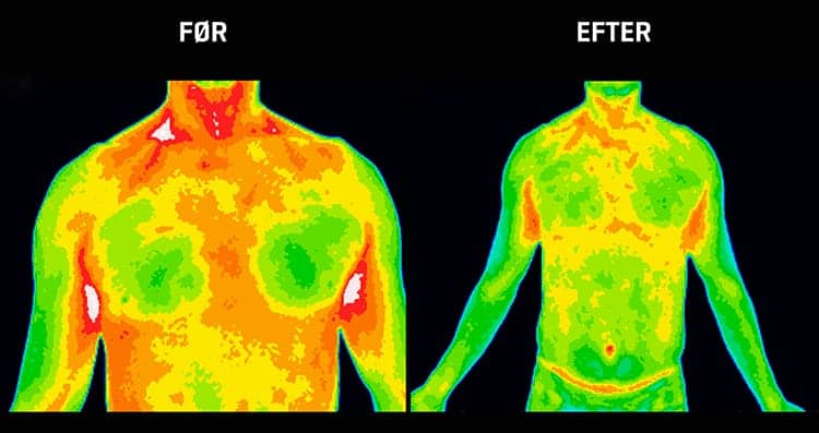 Mindre inflammation i bryst
