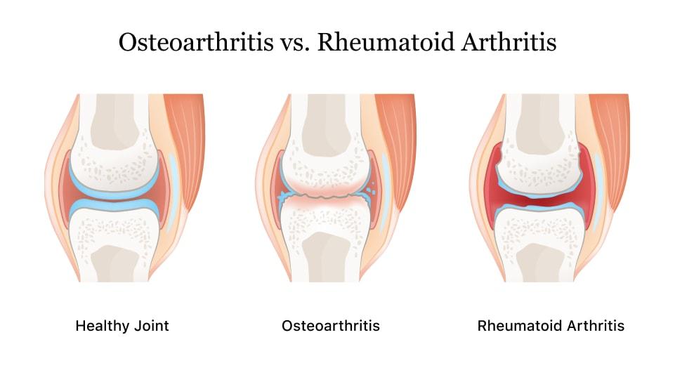 Delta 8 for Arthritis and Osteoarthritis
