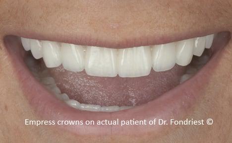 Repairing celiac teeth