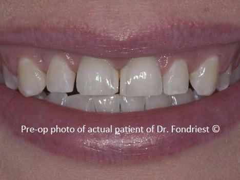 spaces between teeth, diastemas, gapped teeth
