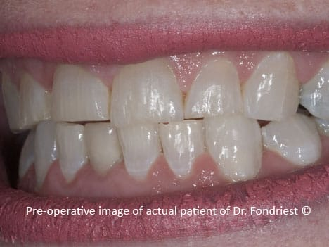 Chipped and worn teeth of a person who bruxes