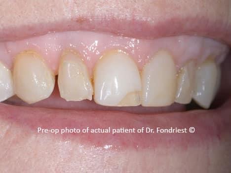 spaces or diastemas between teeth, gapped teeth