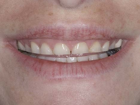 Replacing lost tooth enamel with bruxism veneers