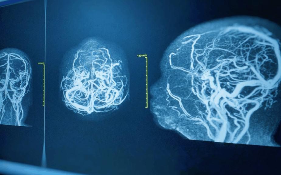 Progressive Neurological Disorders - Brain with degeneration - Buffalo NY