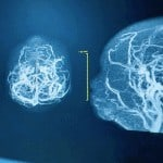 Progressive Neurological Disorders - Whole Body Therapy