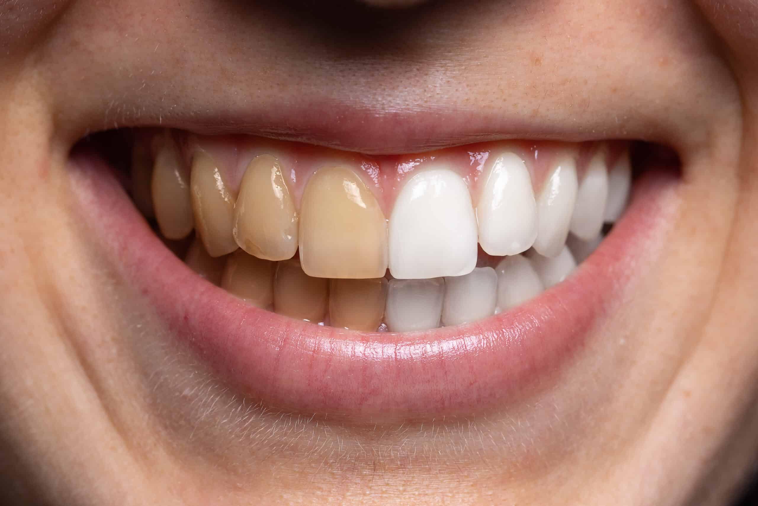 teeth whitening transformation