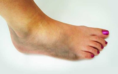 All About Sprained Ankles