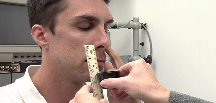 Noninvasive Smell Test may Detect Early Alzheimer's