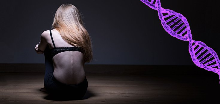 Anorexia May Be Genetic, Not Just a Mental Health Issue