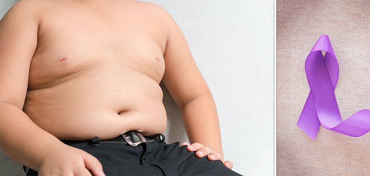 Being Overweight During Adolescence may Increase Pancreatic Cancer Risk