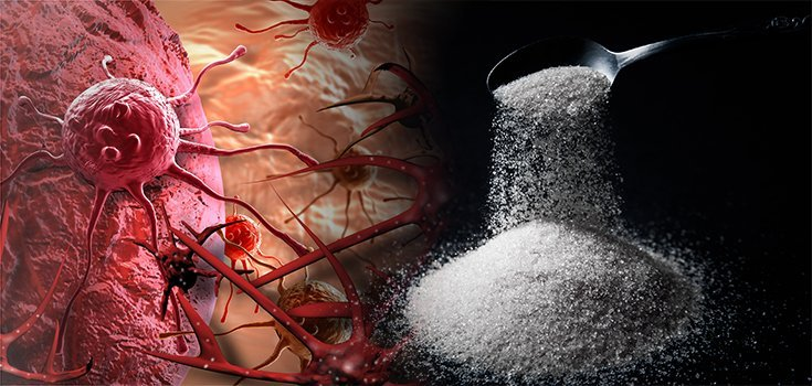 Irrefutable Evidence that Sugar Causes and Fuels Cancer
