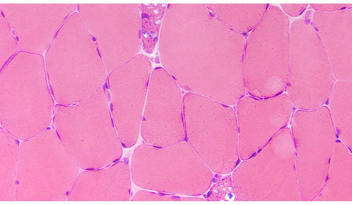Pink Glycogen Under Microscope Gatewayextension